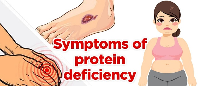 signs of protein deficiency